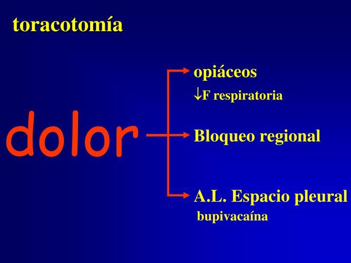 toracotomía