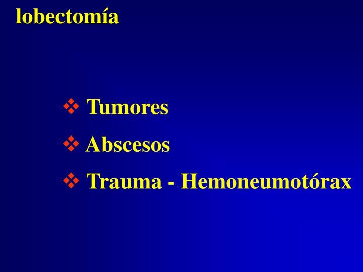 lobectomía