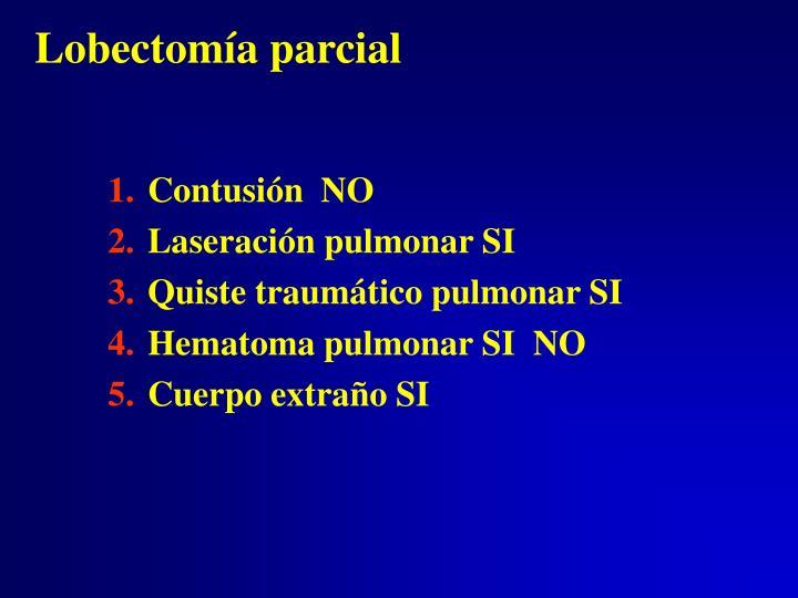 Lobectomía parcial