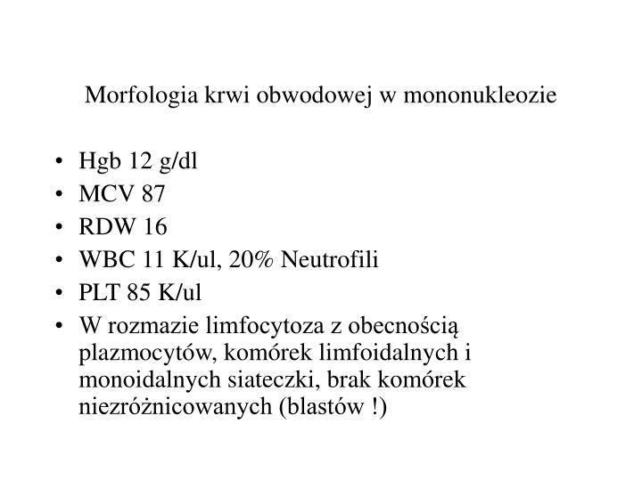 Morfologia krwi obwodowej w mononukleozie