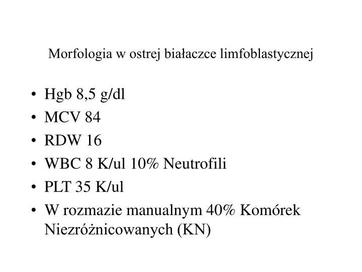 Morfologia w ostrej białaczce limfoblastycznej