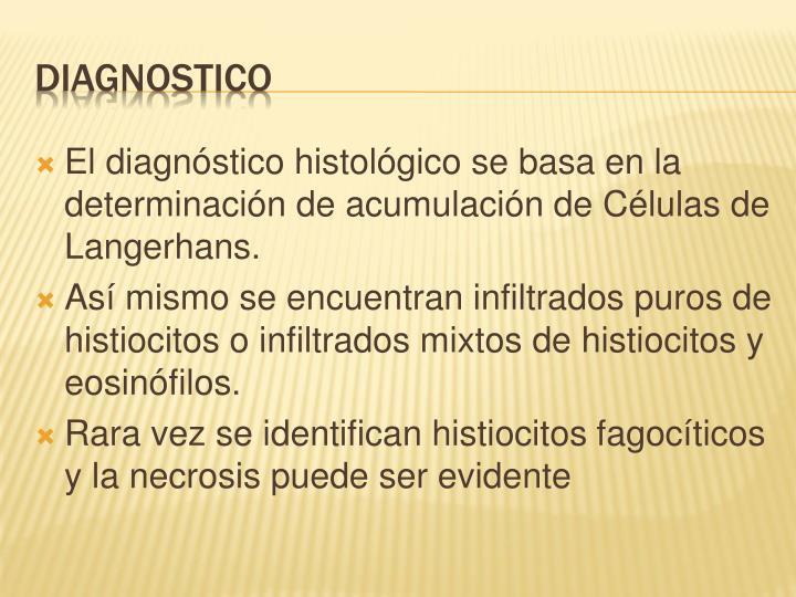 El diagnóstico histológico se basa en la determinación de acumulación de Células de