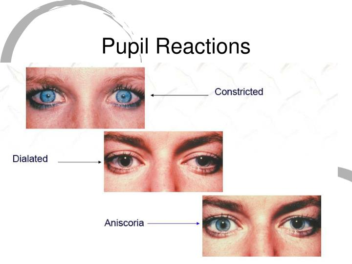 Pupil Reactions