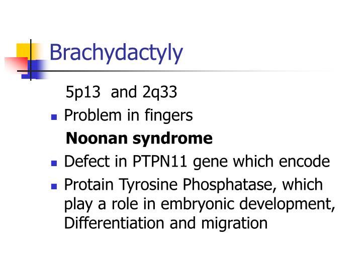 Brachydactyly