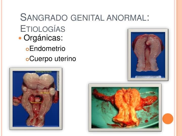 Sangrado genital anormal:
