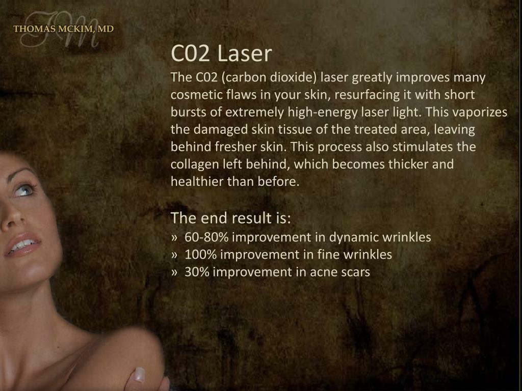 C02 Laser