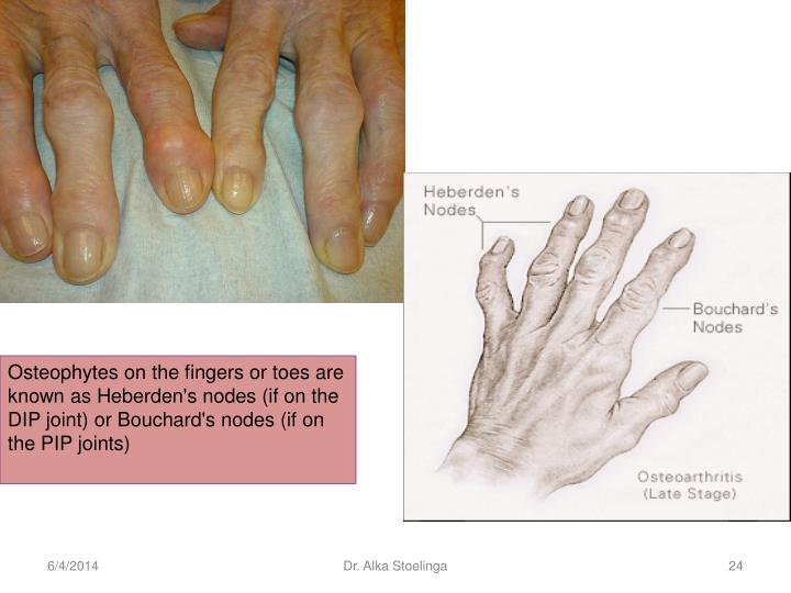 Osteophytes on the fingers or toes are known as Heberden's nodes (if on the DIP joint) or Bouchard's nodes (if on the PIP joints)