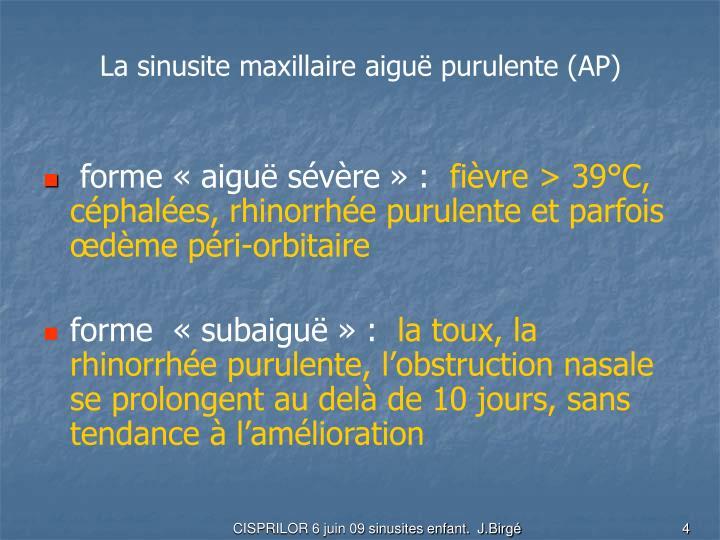 La sinusite maxillaire aiguë purulente (AP)