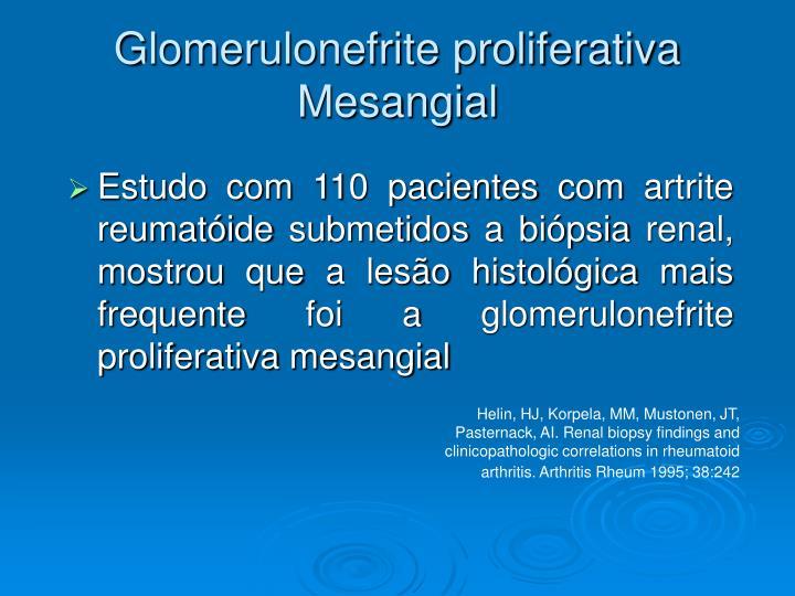 Glomerulonefrite proliferativa Mesangial