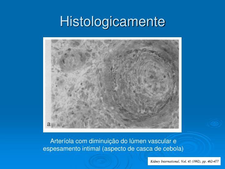 Histologicamente