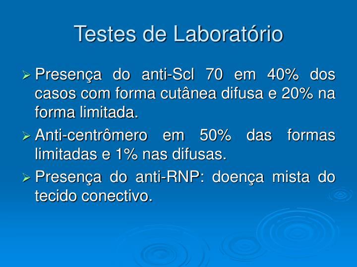 Testes de Laboratório
