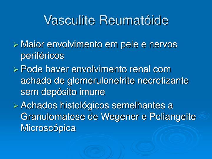 Vasculite Reumatóide