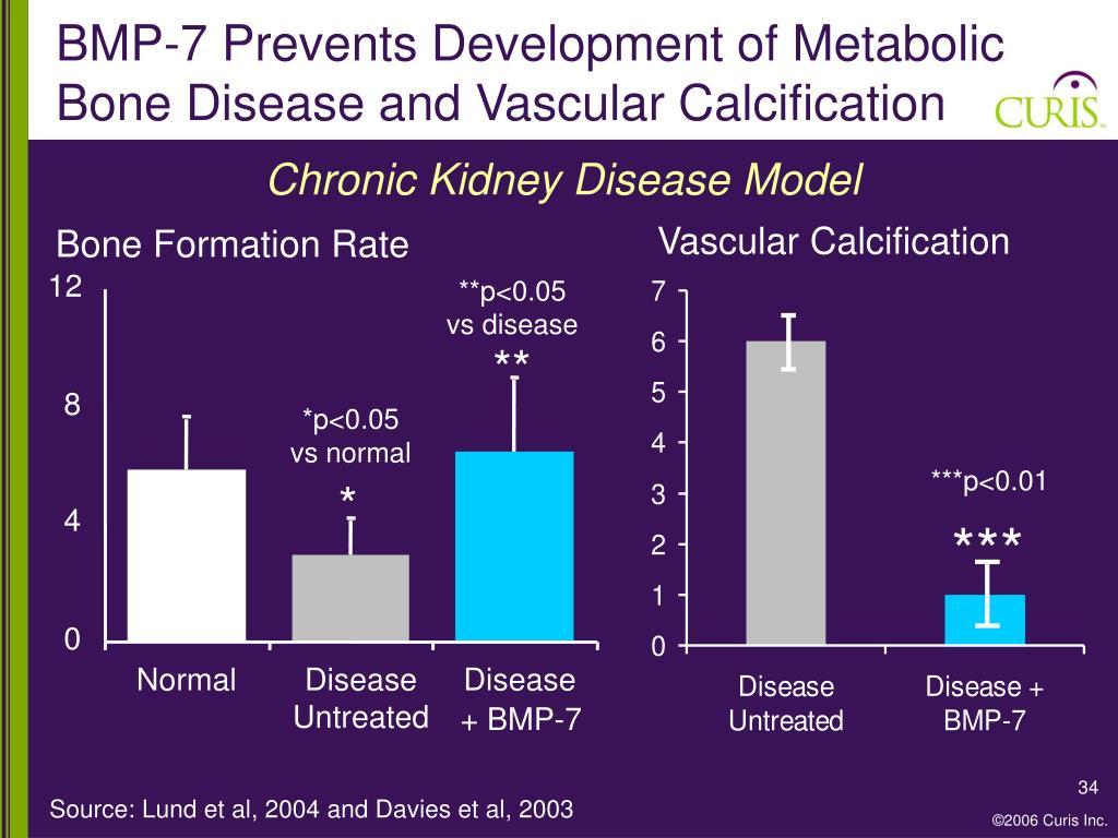 BMP-7 Prevents Development of Metabolic