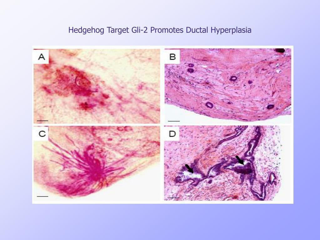 Hedgehog Target Gli-2 Promotes Ductal Hyperplasia