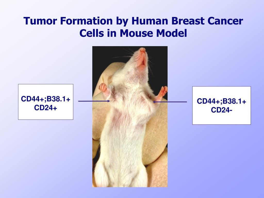 Tumor Formation by Human Breast Cancer Cells in Mouse Model