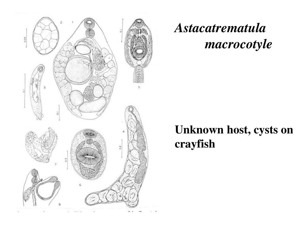 Astacatrematula macrocotyle