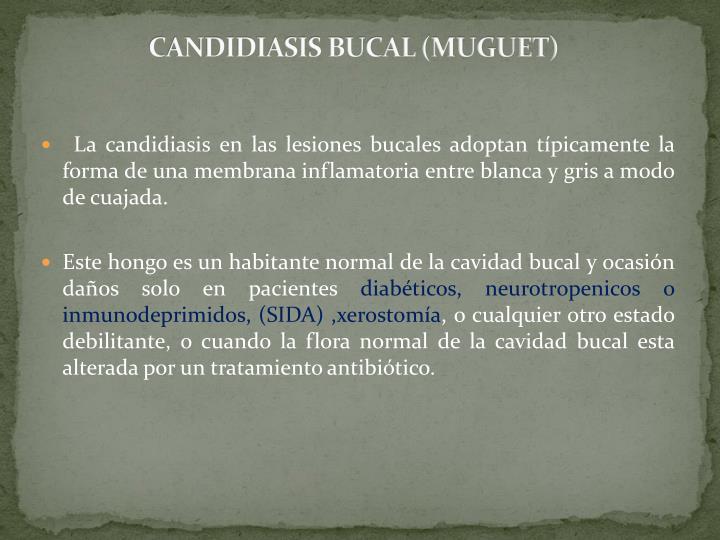 CANDIDIASIS BUCAL (MUGUET)