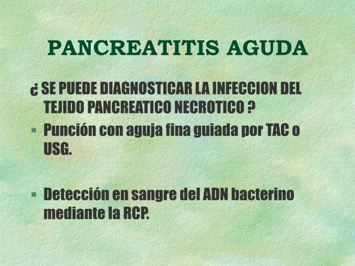 Pancreatitis aguda2