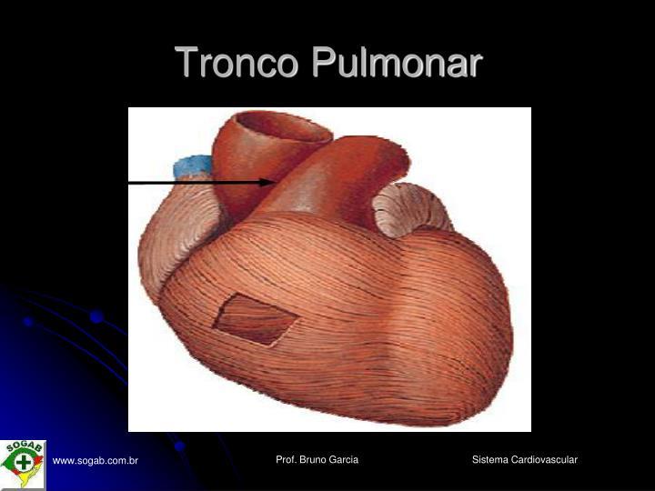 Tronco Pulmonar