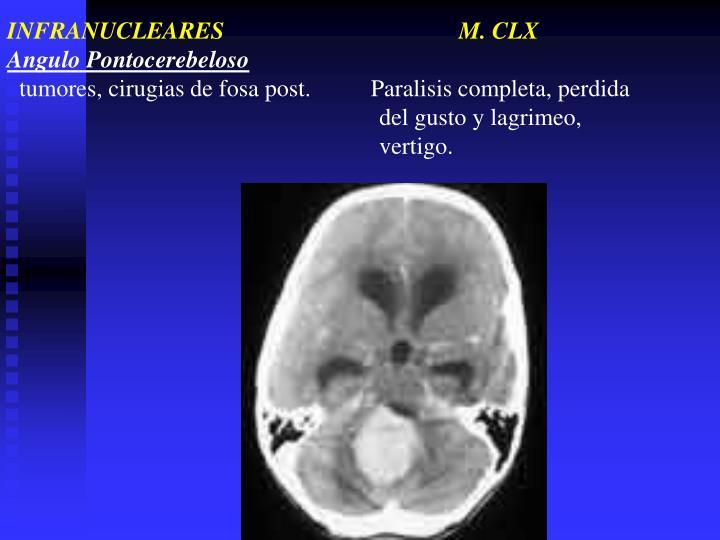 INFRANUCLEARES                                       M. CLX