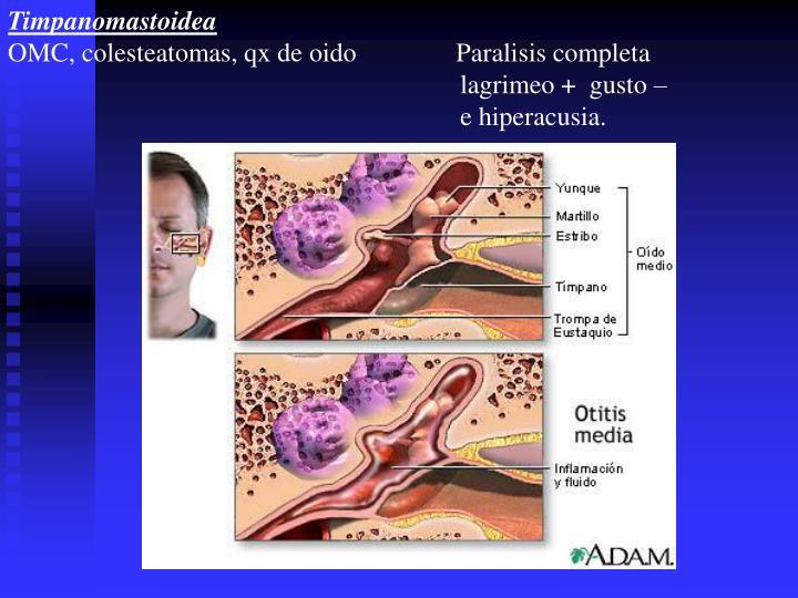 Timpanomastoidea