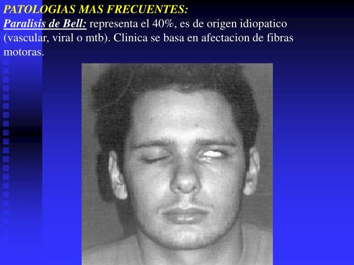 PATOLOGIAS MAS FRECUENTES: