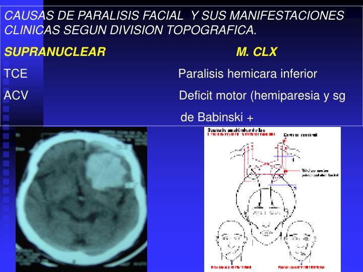 CAUSAS DE PARALISIS FACIAL  Y SUS MANIFESTACIONES CLINICAS SEGUN DIVISION TOPOGRAFICA