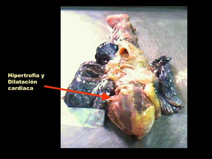Hipertrofia y