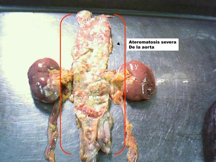 Ateromatosis severa
