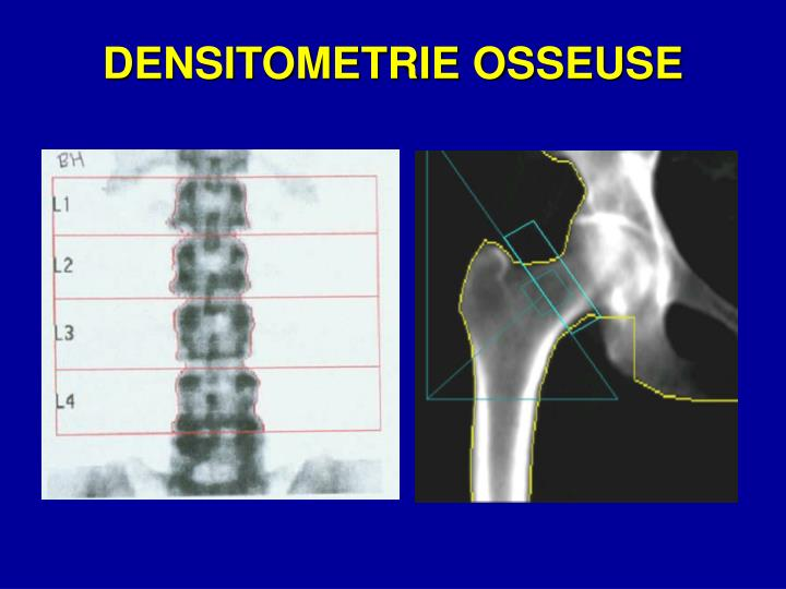 DENSITOMETRIE OSSEUSE