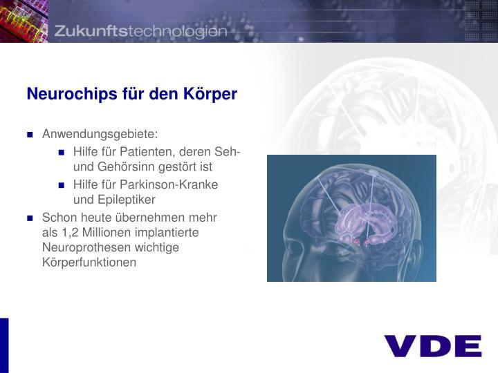 Neurochips für den Körper