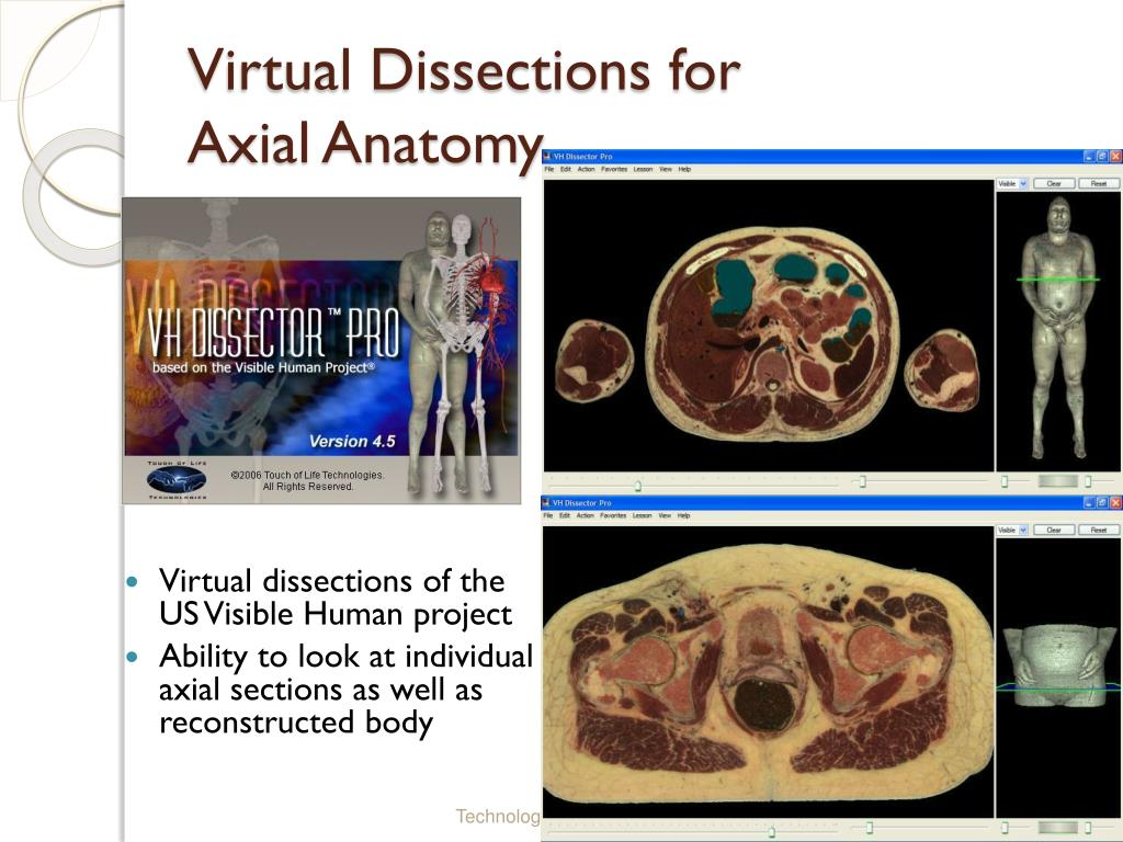 Virtual Dissections for