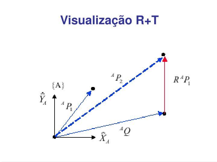 Visualização R+T