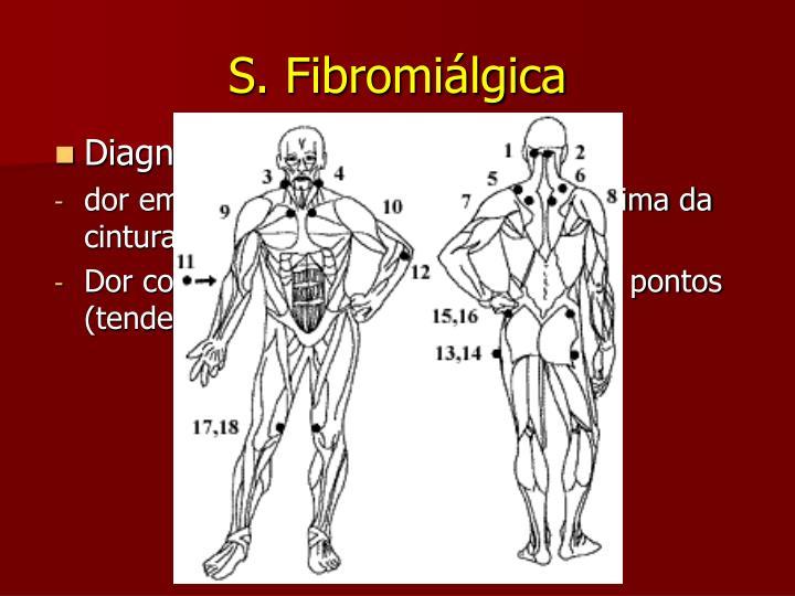 S. Fibromiálgica