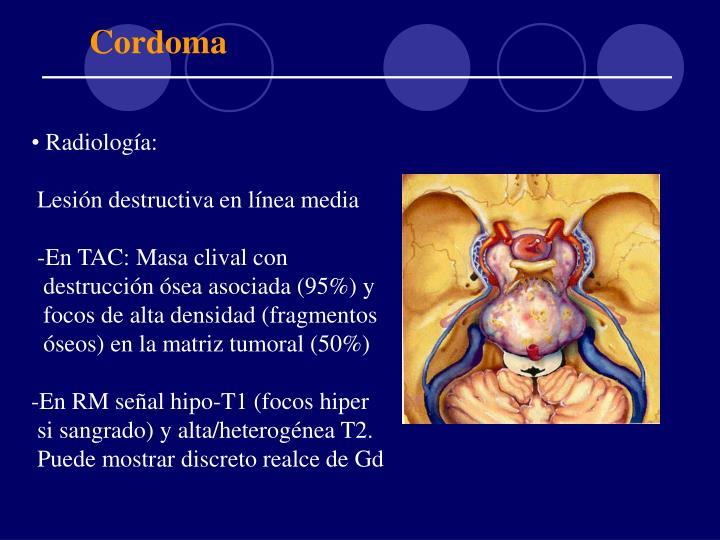 Cordoma