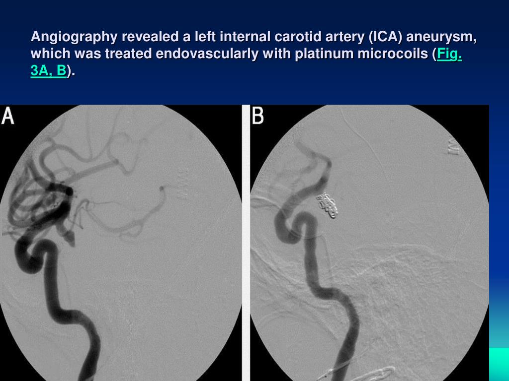 Angiography revealed a left internal carotid artery (ICA) aneurysm, which was treated endovascularly with platinum microcoils (