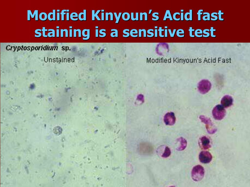 Modified Kinyoun's Acid fast staining is a sensitive test