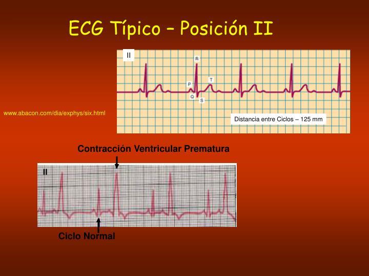 ECG Típico – Posición II