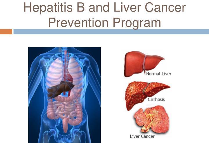Hepatitis B and Liver Cancer Prevention Program