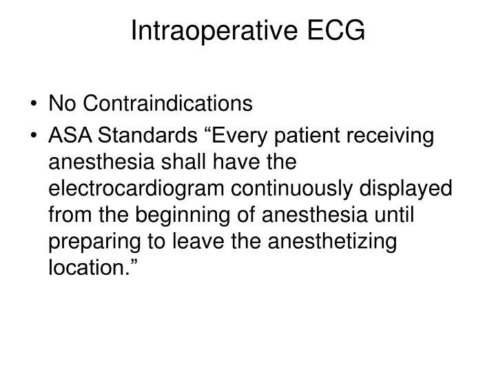 Intraoperative ECG