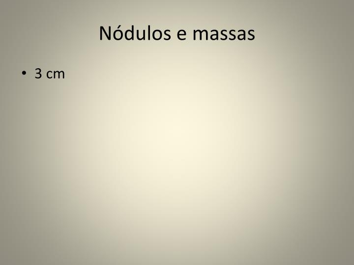 Nódulos e massas