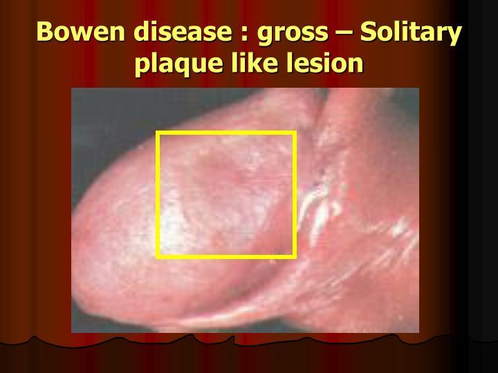 Bowen disease : gross – Solitary plaque like lesion