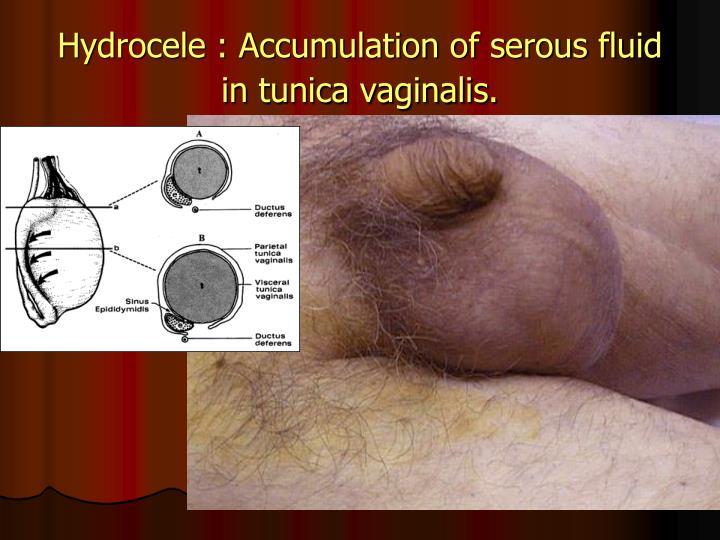 Hydrocele : Accumulation of serous fluid in tunica vaginalis.