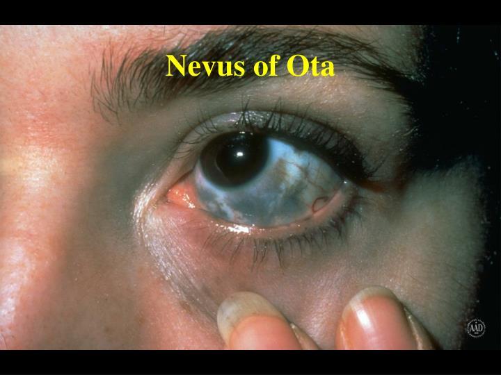 Nevus of Ota