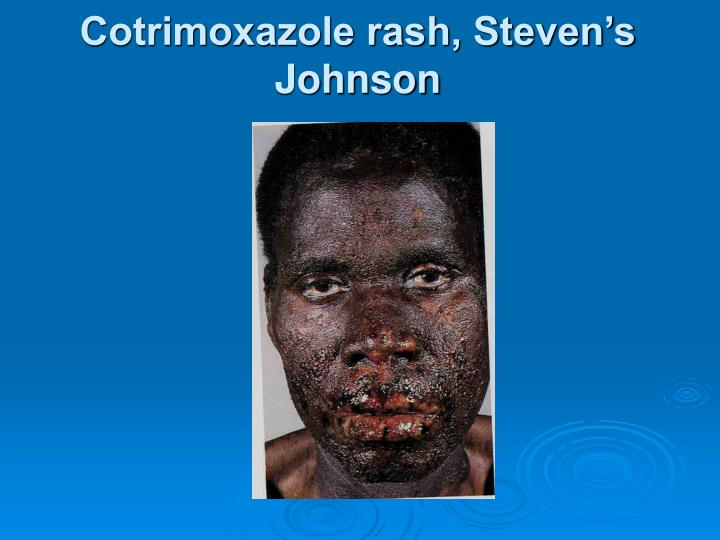 Cotrimoxazole rash, Steven's Johnson