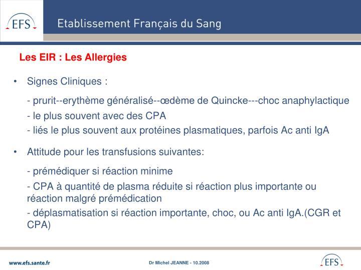 Les EIR : Les Allergies