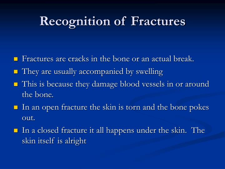 Recognition of Fractures