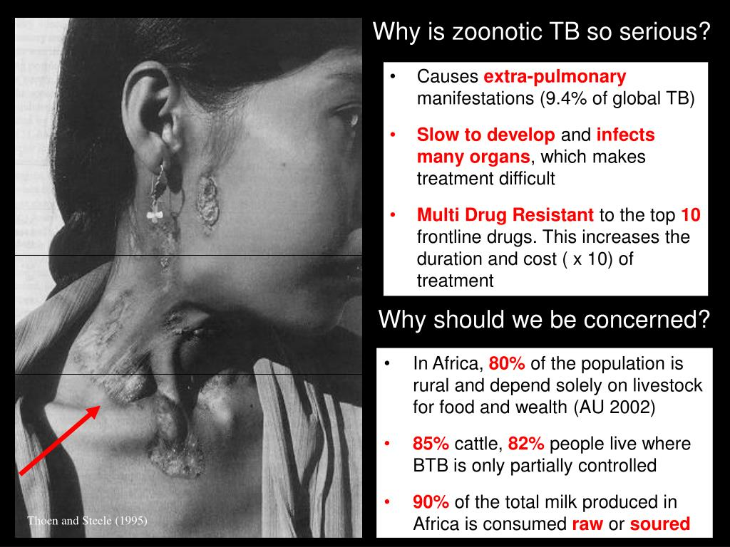 Why is zoonotic TB so serious?
