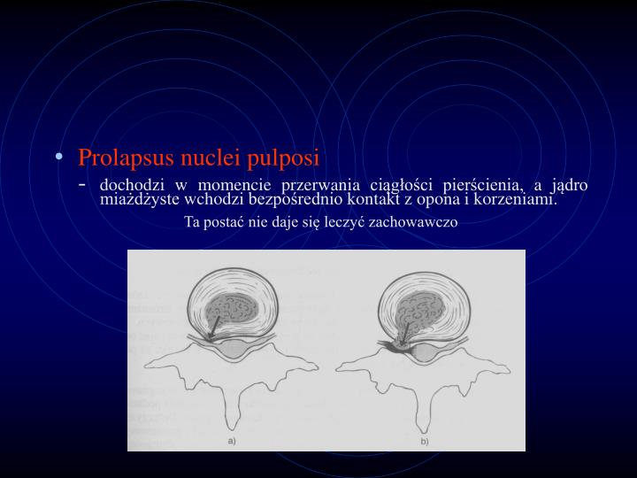Prolapsus nuclei pulposi