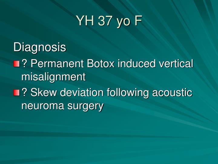 YH 37 yo F